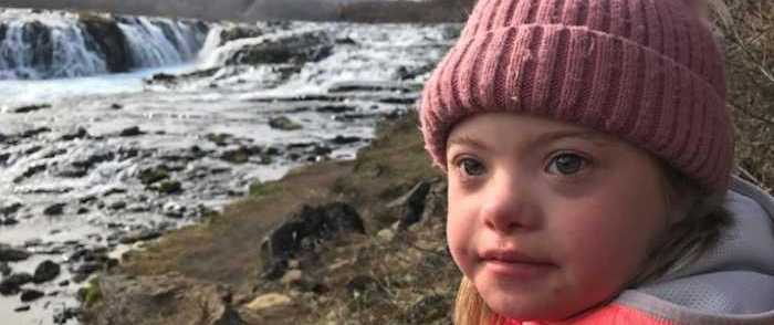 CBS Slammed for Report About Iceland 'Eliminating' Down Syndrome with Abortion