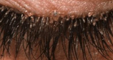 ICK! What are Eyelash Mites?!
