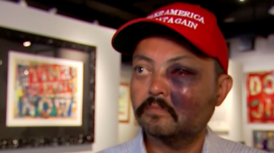 Man Attacked In NYC For Wearing MAGA Hat, Media Says Nothing
