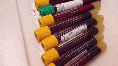 New Paper Based Test Can Determine Blood Type in 30 Seconds