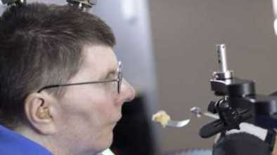 Quadriplegic's Arm & Hand Partially Restored by Thought-Control Tech
